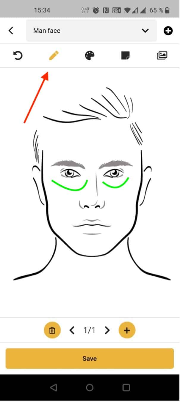 Drawing on patient image function MERIDIQ